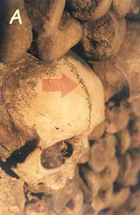 Skull with frontal suture