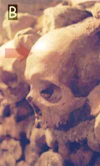 standard frontal bone