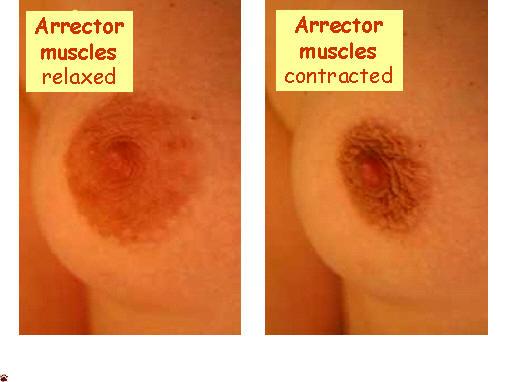 nipple arrector